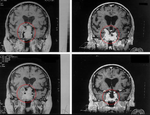 {Brain Tumor Treatment Results Pituitary Tumor with Radiosurgery}